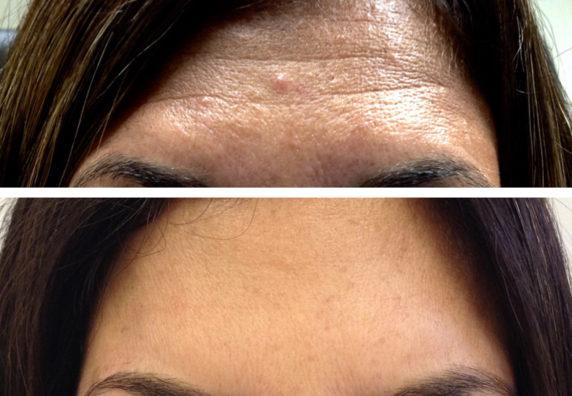 forehead-web