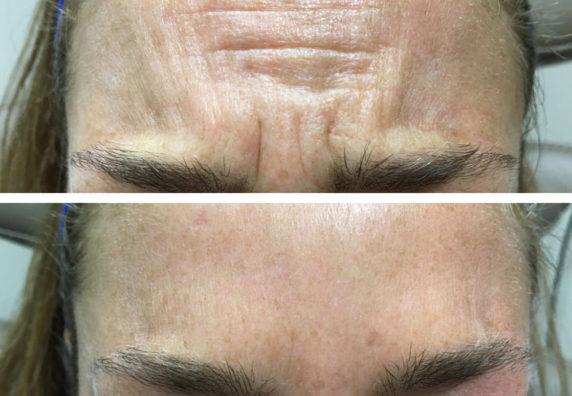 forehead-11-web