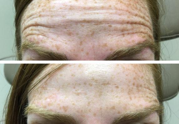 forehead2-web