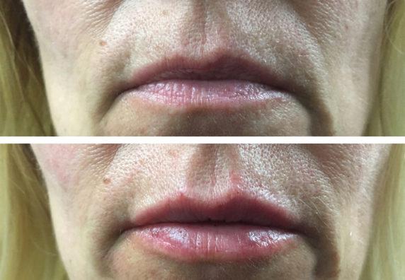 lipsfrontweb
